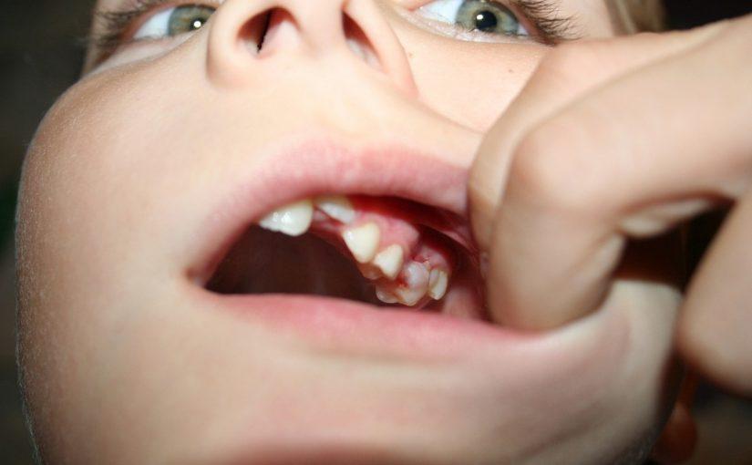 Warto systematycznie odwiedzać stomatologa